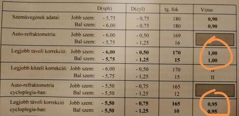 fizetett szemműtét)